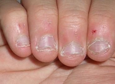 Definitivamente morderse las uñas es un signo de este tipo de personalidad