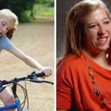 Así cambiaron las famosas gemelas quienes comparten un solo cuerpo.
