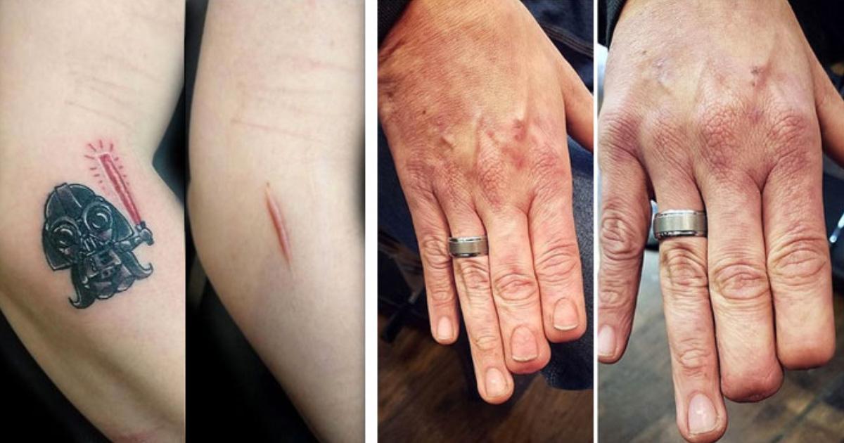 18 personas que transformaron sus cicatrices y marcas de nacimiento en obras de arte