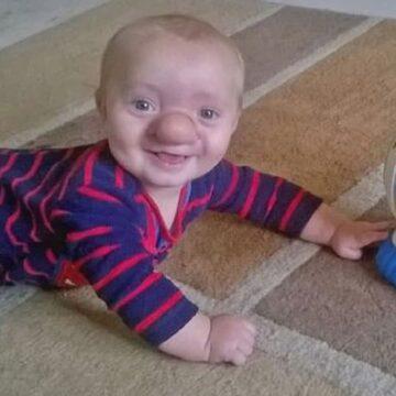 """Con 3 años de edad el """"niño Pinocho"""" recibe una cirugía"""
