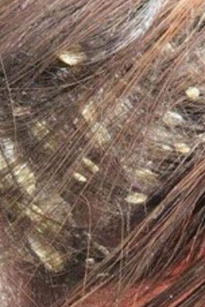 Lo que encontraron en su cabello sorprendió a todos los doctores