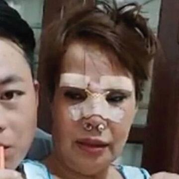 Mujer de 62 años se casa con un hombre de 26 y se somete a operaciones para verse más joven