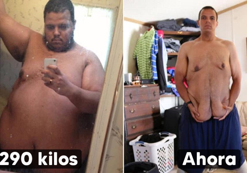 Logró bajar 160 Kilos siguiendo consejos de entrenadores y ahora luce irreconocible