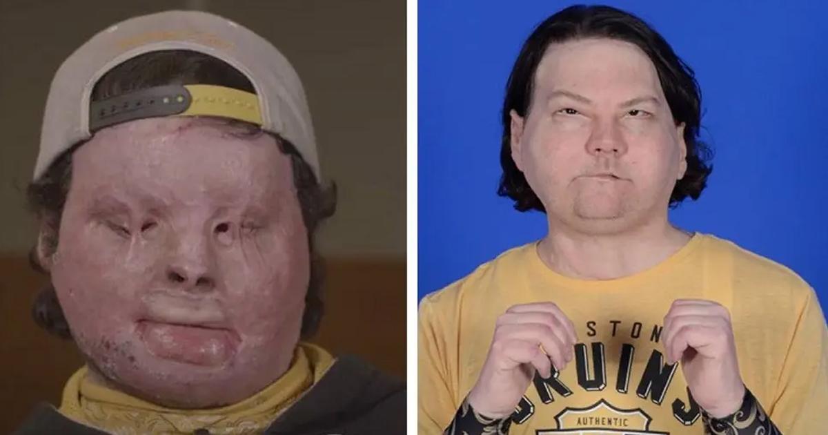 Él es el primer paciente del mundo en recibir un trasplante de cara, ahora luce mejor