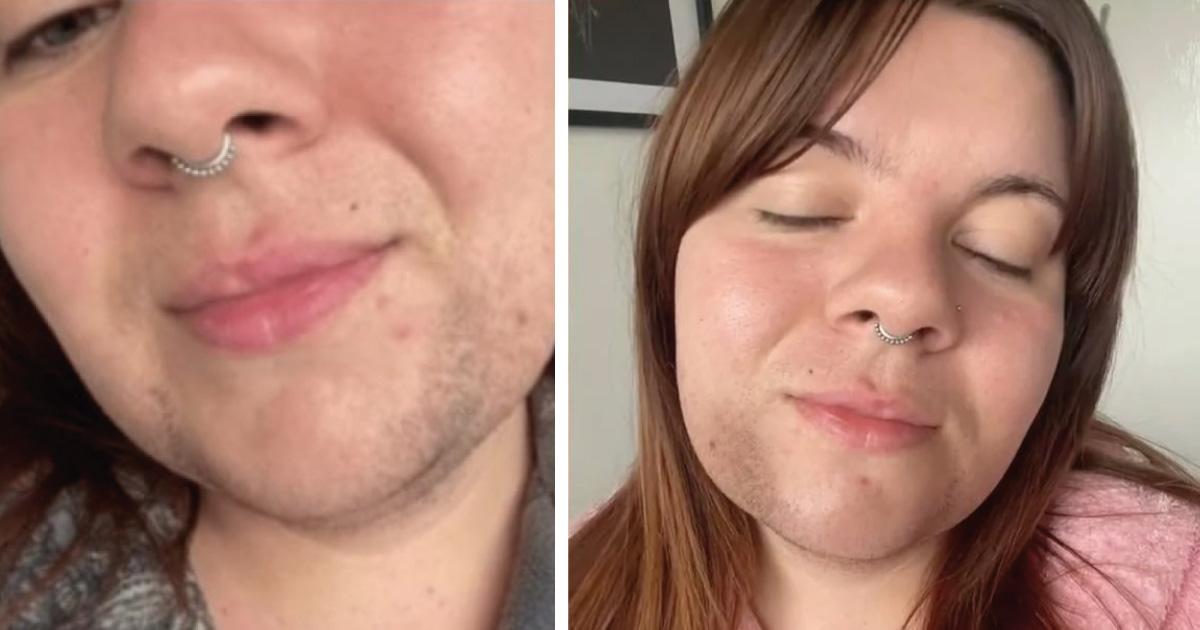 «Tener vello facial no me hace fea». Mujer defiende su barba ante las criticas del mundo
