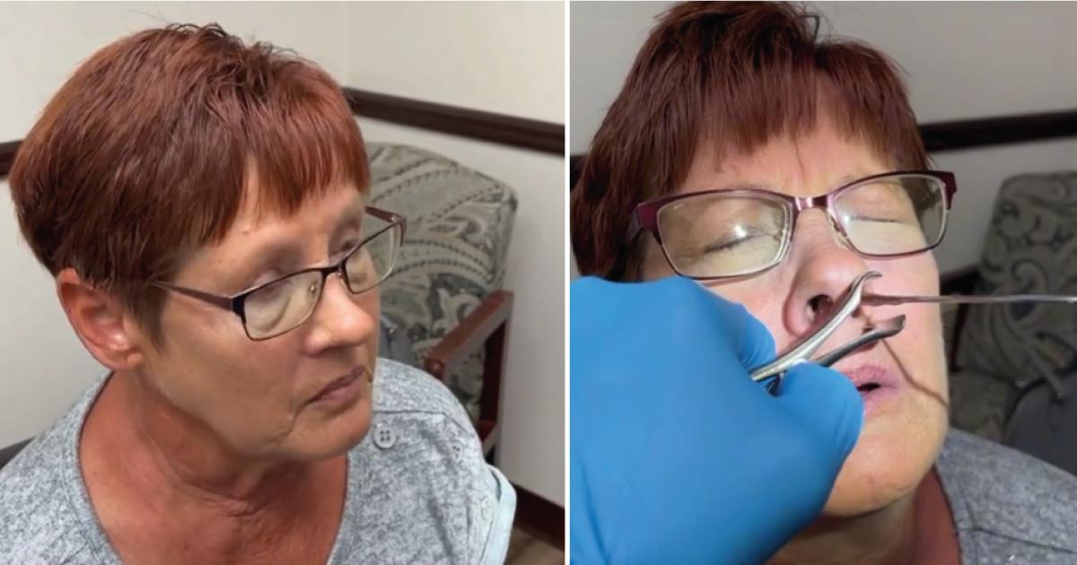 Mujer mayor no podía respirar bien. Lo que le sacaron de la nariz le permitió respirar a la perfección
